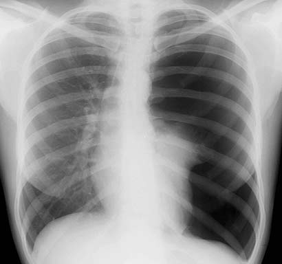 spontaneous pneumothorax Is there any guidance regarding management of spontaneous pneumothorax/ pneumomediastinum developing in labour or postpartum also, what is.